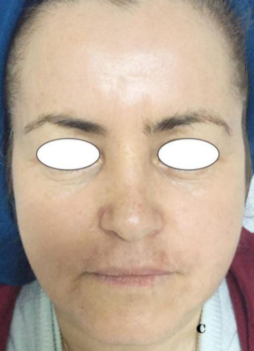 mejoria del rostro con plasma rico en plaquetas