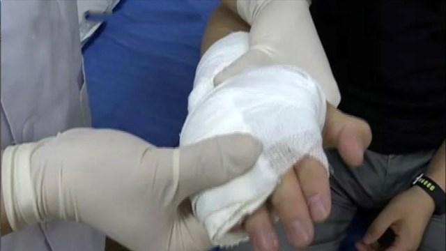 مشجع يكسر يده أثناء مشاهدة مباراة السعودية في كأس العالم