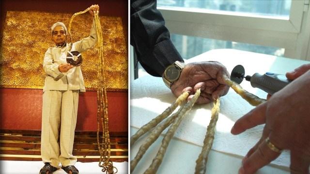 صاحب أطول أظافر في العالم .. قرّر قصّها بعد 66 عامًا