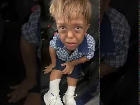 طفل يبكي بعد سخرية زملائه من قصر قامته .. ووالدته تشاركه البكاء بعدما طلب منها الانتحار