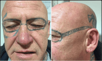Man Awakens At British Bachelor Party To Ray Ban Tattooed On His Face