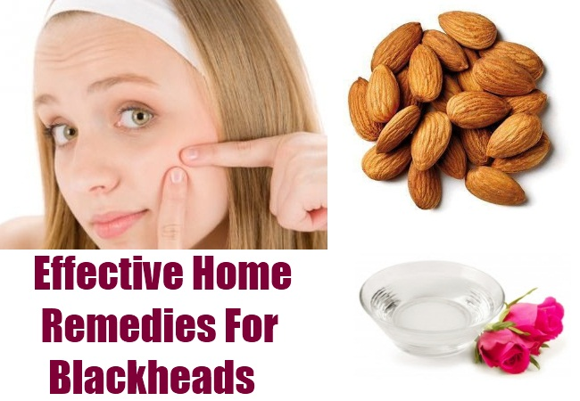 11 Easy, Remedies ,Get Rid of Blackheads ,5 Minutes