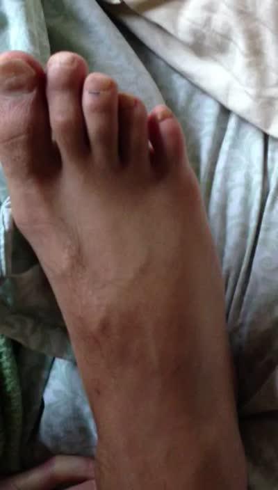 Wiggling Pinky Toe