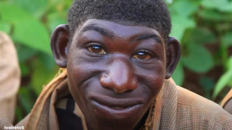 «Ils m'ont traité de singe; mais aujourd'hui, ils me respectent»: l'histoire de ce garçon vous surprendra