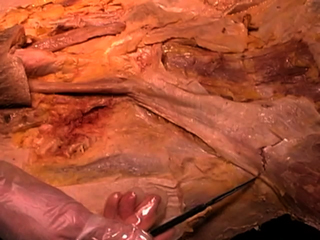 Picture from Peritoneal Cavity video