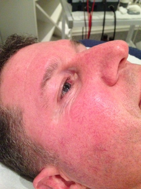 Eye area 12 days after DMK treatment.