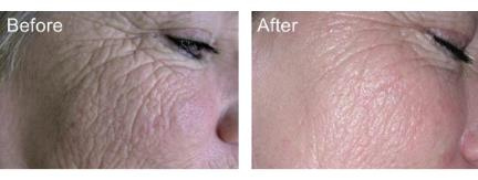 Wrinkled skin: Pre and post pictures after DMK Alkaline wash