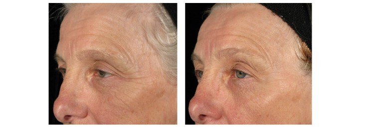 Pre and post pictures of results after using Environ Revival Masque for 5 months