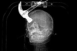 man attacked with hammer