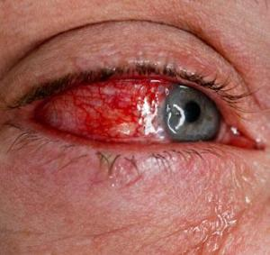 conjunctivitis-close