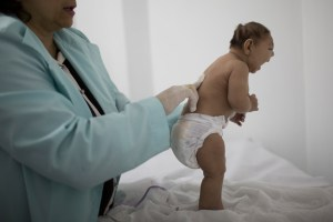 Lara, who is less then three months old and was born with microcephaly, is examined by a neurologist at the Pedro I hospital in Campina Grande, Paraiba state, Brazil, Friday, Feb. 12, 2016. Alarm in recent months over the Zika virus, which many researchers believe can cause microcephaly in the fetuses of pregnant women, has prompted calls, both inside and outside Brazil, to loosen a near-ban on abortion in the worlds most populous Catholic country. But the pro-choice push is creating a backlash, particularly among the families of disabled children. (AP Photo/Felipe Dana)