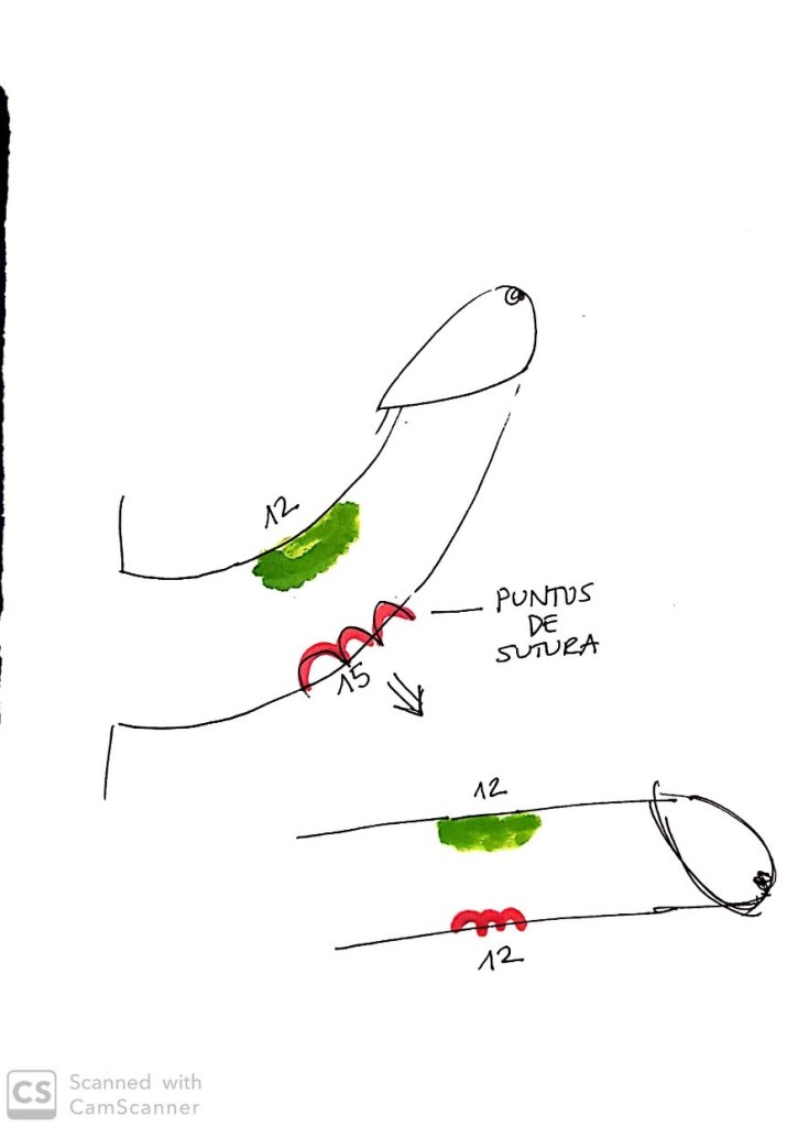 curvatura congenita del pene)