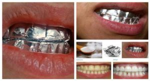 Baking Soda Uses For Cleaning Health Benefits And Beauty Uses