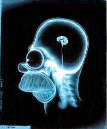 simpson MRI