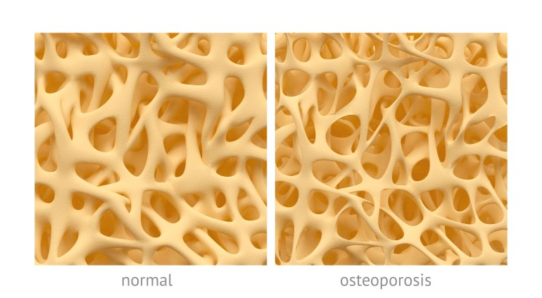 normal and osteoporosis bone