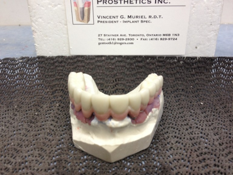 fixed dental implant bridge