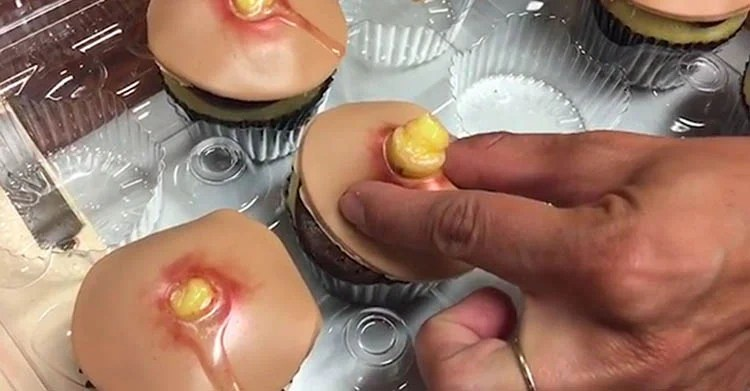 pimple-cupcakes-dr-pimple-popper-blessed-by-baking-vinegret (1)