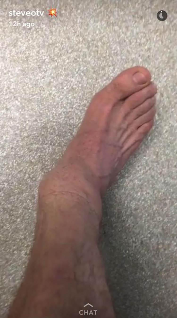 steve-o-i-ego-travma-nogi-vinegret (1)
