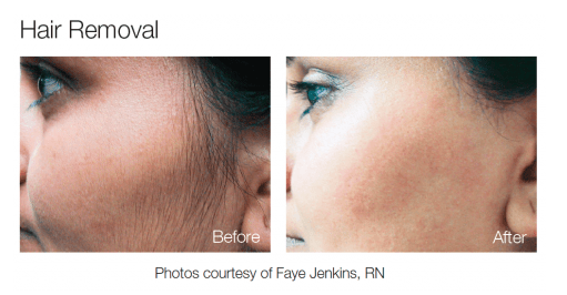 Electrolysis Side Effects