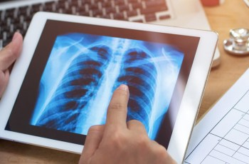 Researchers find evidence of racial, gender, and socioeconomic bias in chest X-ray classifiers