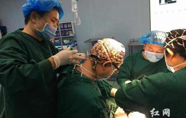 Surgeon Li Xin earned praises from netizens after showing his dedication to his profession. [Photo by CGTN/Facebook]