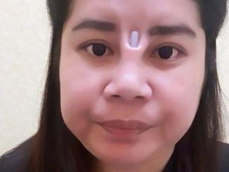 The woman from Thailand suffered from a failed nose job. [Image Credit: AsiaWire]
