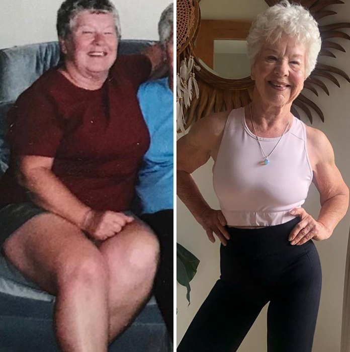 Daughter Helps 73-Year-Old Mom Lose 50+ Pounds