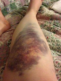 leg car accident