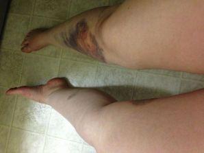run over both legs bruises all oveer slowly rising