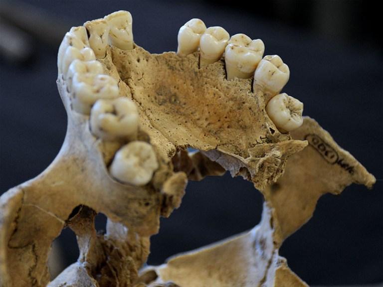 teeth_skull_joel