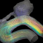 Endovascular effect on blood flow in cerebral aneurysm