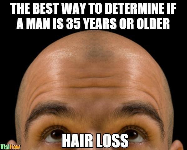 How Long Does It Take For A Receding Hairline To Make You