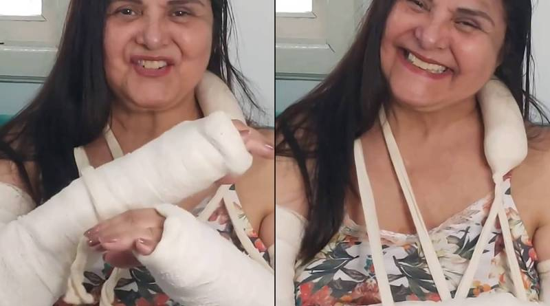 Atriz Elizangela sofre acidente em casa e fratura antebraços: 'Estou legal' – 24/10/2021 – Celebridades