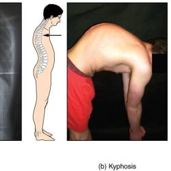 How to Correct Spinal Curvature Disorder with Exercise