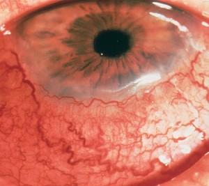 Les vaisseaux de la conjonctive sont dilatés