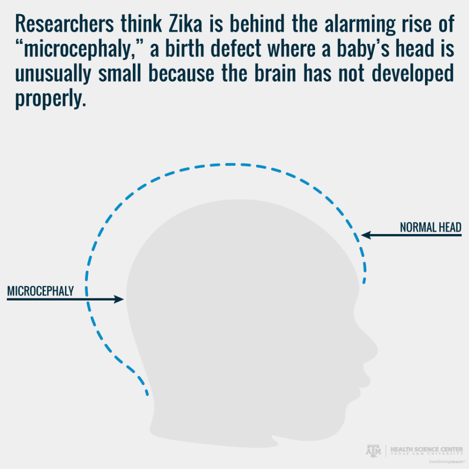pregnant women and zika virus - microcephaly graphic