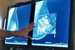 Breast cancer affects over 200,000 women each year.