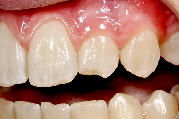 Nail biting is also bad for your pearly whites
