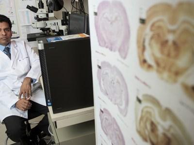 Epilepsy research with Samba Reddy