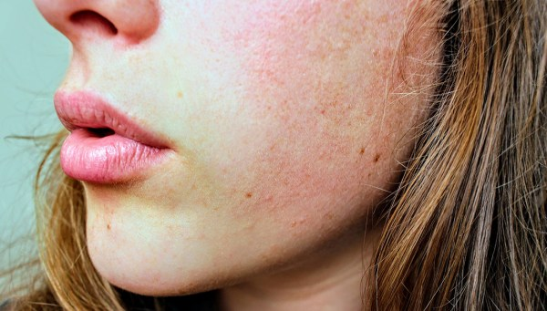 Close-up picture of a woman's jaw and cheek that shows dry skin