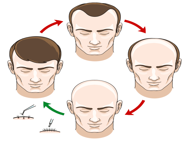 What Is The Best Age For Hair Transplant In Dubai