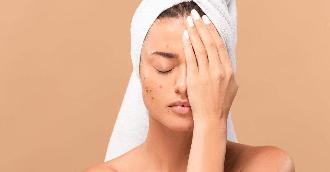 Cicatrici da acne e cicatrici oncologiche: i trattamenti migliori