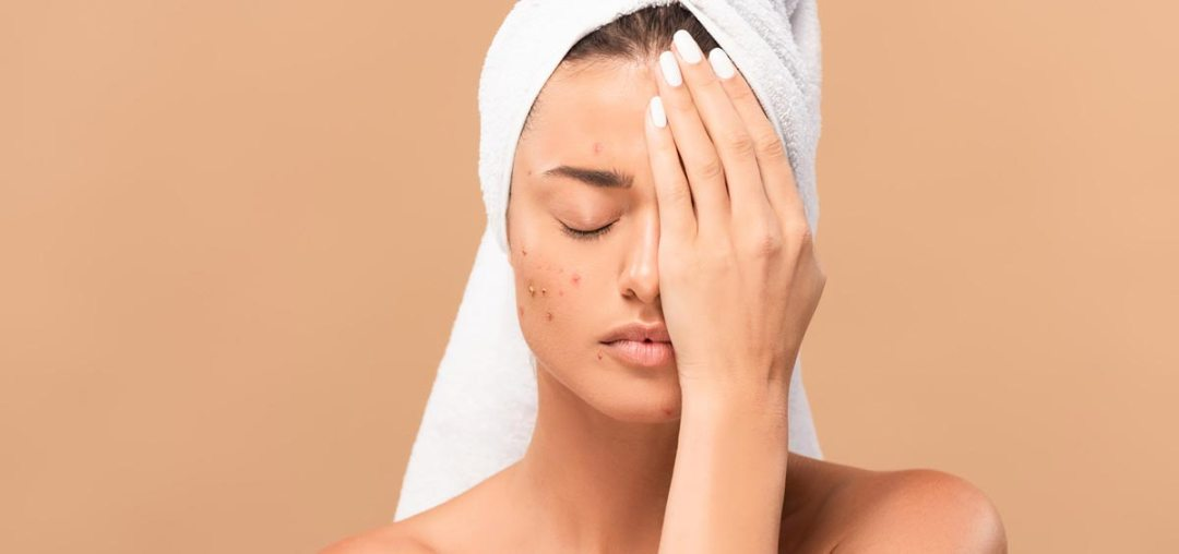soluzione cicatrici da acne e imperfezioni cutanee - VITAYES
