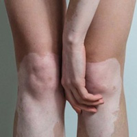 Treating Vitiligo Joints