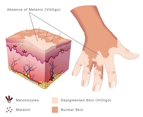 Vitilox Vitiligo Treatment