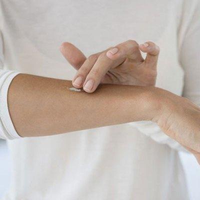 Applying Vitilox Vitiligo Pigmentation Cream