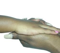 Vitiligo hand case study