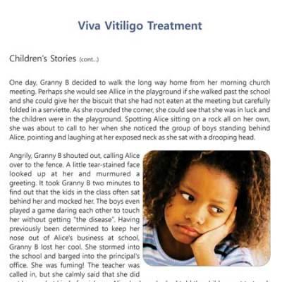 vitiligo treatment in children