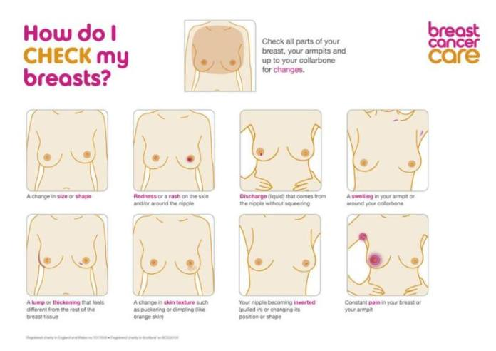 breast-cancer-signs-symptoms