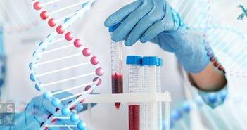 Celiachia: Nuovo esame del sangue in arrivo